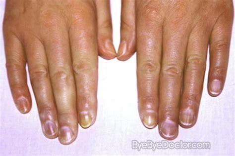 cyanotic nail beds cyanosis pictures symptoms causes treatment