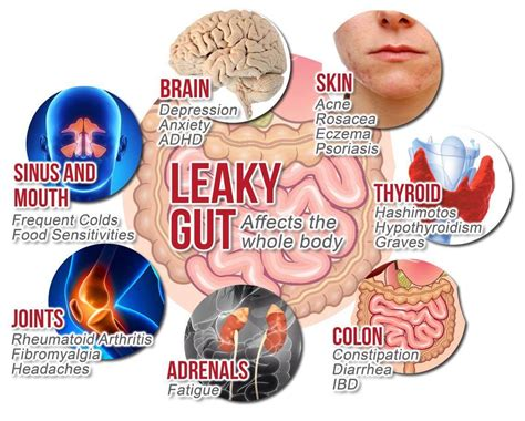 How To Detox Gut Bacteria by Cleansing To Optimise Gut Health Amity Wellness