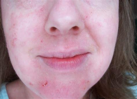 Suplemen Pemutih Badan kenali ciri suplemen pemutih kulit berbahaya