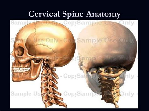 Ppt Traumatic Spine And Spinal Cord Injuries Powerpoint Cervical Spine Anatomy Ppt