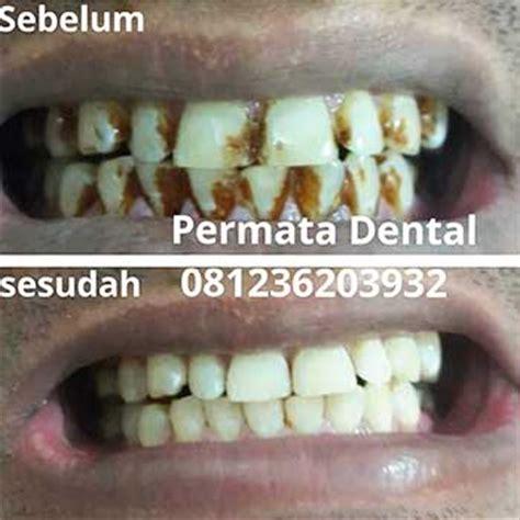Membersihkan Karang Gigi Di Ahli Gigi Ahli Gigi Bali Permata Dental Bersihkan Karang Gigi