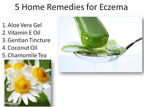home remedies for eczema home remedies