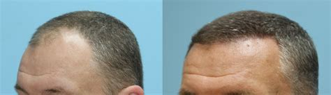fue hair transplant reviews 5 month follow up fue hair transplant results of 2500