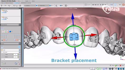 tutorial construct 2 portugues cementado indirecto de brackets 3 formas con maestro3d