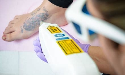 Tattoo Removal London Groupon   laser tattoo removal london body centre groupon