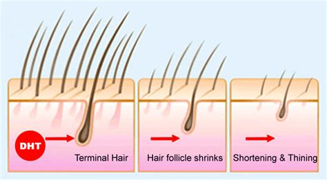 how to strengthen hair follicles in females over 40 baldness is a real problem