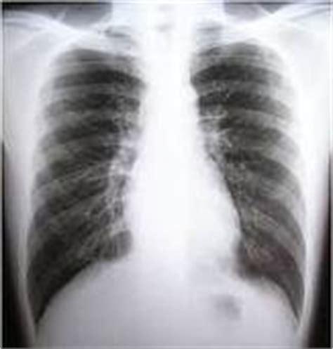 format asuhan keperawatan tb paru asuhan keperawatan tuberculosis tbc paru