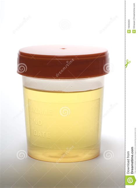 how can a urine specimen sit at room temperature urine sle stock photos image 19030263