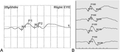 pattern reversal evoked potentials the effect of change of check size and wavelength of