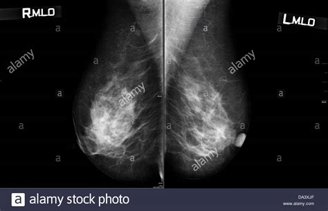 mammogram images normal mammogram stock photo 57864423 alamy