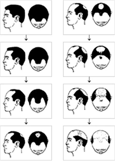 pattern baldness meaning female and male hair loss australian institute of hair