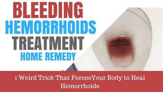 bleeding hemorrhoids treatment home remedy 48 hour cure