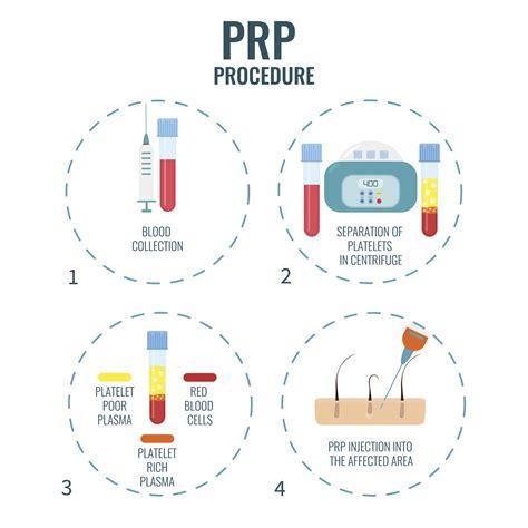 protein rich plasma platelet rich plasma prp tennessee orthopaedic alliance