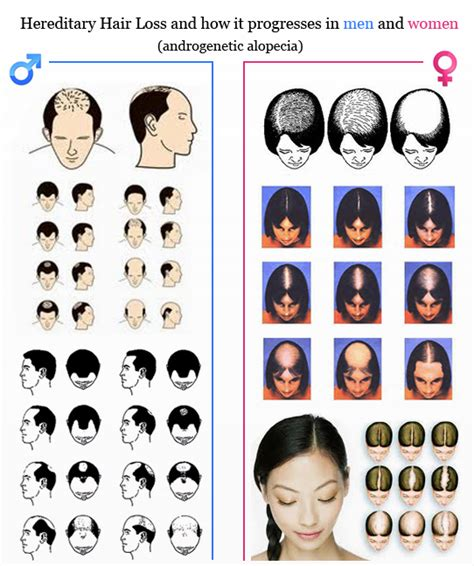 top partial systems female pattern baldness shears to female pattern baldness what is female pattern baldness