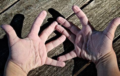 pruney digits help get a grip science news