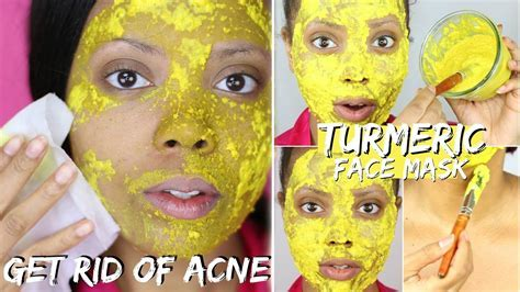 BEST DIY TURMERIC FACE MASK BEFORE AND AFTER PHOTOS   BEST