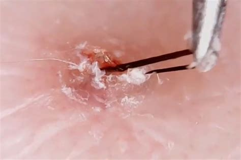 plucking pube hair woman who post grizzly videos plucking her ingrown hairs