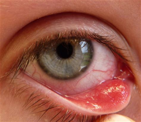 bump on s eyelid lump on eyelid white cyst no pictures stye chalazion on children how