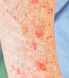 u light treatment for actinic keratosis photodynamic therapy for actinic keratosis center for