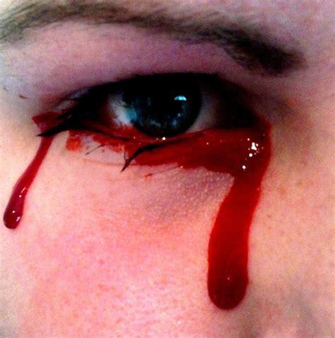 Blood And Tears pleurer des larmes de sang mo 239 cani l od 233 onie