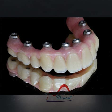 dental implant hybrid dentureid buy china aesthetic dental hybrid denture dental