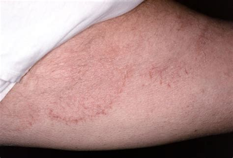 itchy remedies itch causes symptoms treatment pictures cure prevention diseases pictures