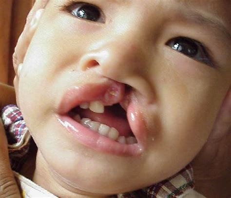 cleft palate brush up on your knowlege of cleft palates with great web resources what speech