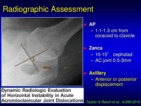 Ac Update ac joint injury update