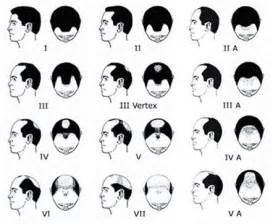 types of hair lines balding why you should watch your hairline men s hair blog
