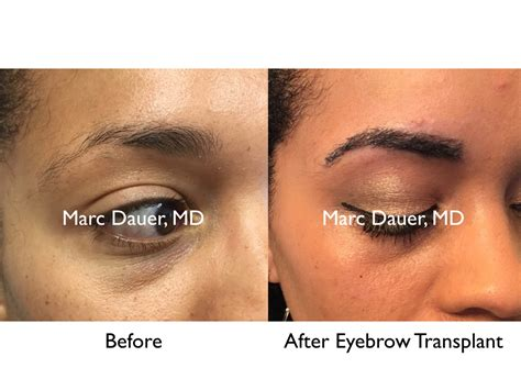 eyebrow shaping on african americans african american eyebrows eyebrow transplant archives hair