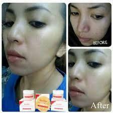 produk yang membuat wajah glowing liyoskin cream krim pemutih wajah alami cepat dan aman