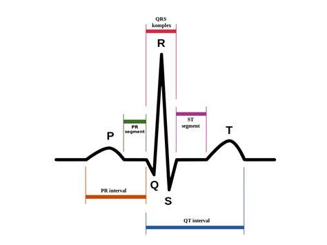 Ekg Diagram