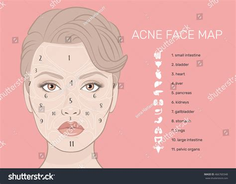 mapping acne acne map vector illustration stock vector 466760348