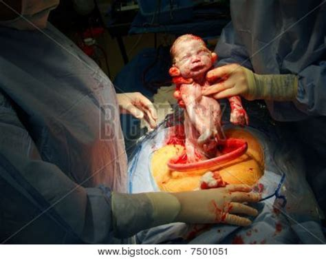 video of c section birth c section birth image cg7p501051c