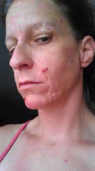 Have a bad skin condition that has been going on for appr