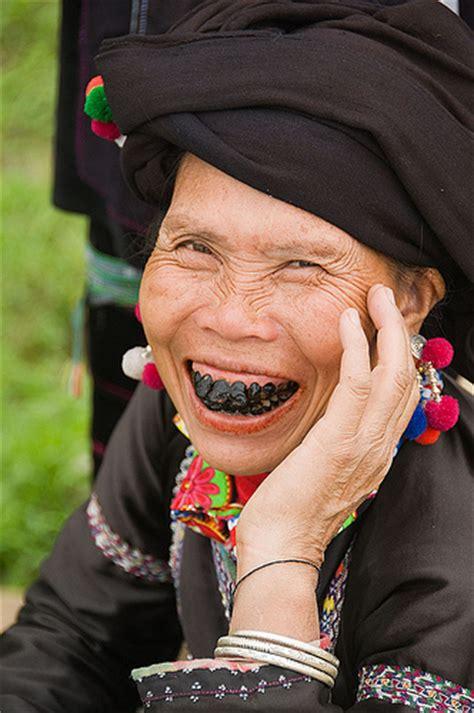 black teeth most bizarre teeth modifications odd strange weirdest things