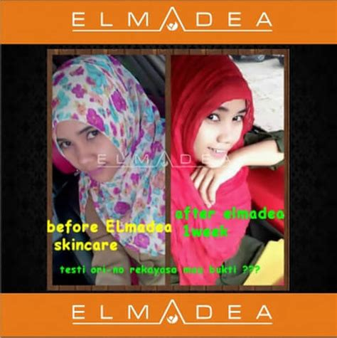 Masker Elmadea by Elmadea Whitening Maestro Herbal