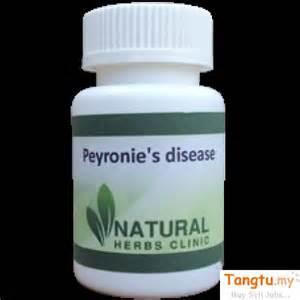 peyronie s disease home treatment herbal remedies for peyronie s disease alor setar