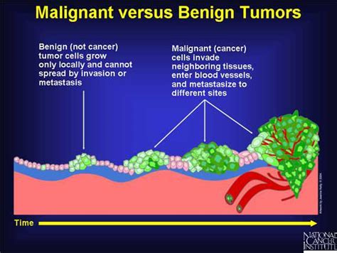 benign tumor on benign and malignant tumors what is the difference