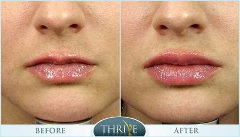 lips tattoo kuala lumpur tattoo removal reviews cost before after photos tattoo
