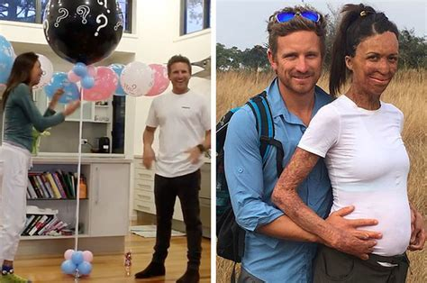 Turia Pitt Just Announced She's Expecting A Baby Boy In