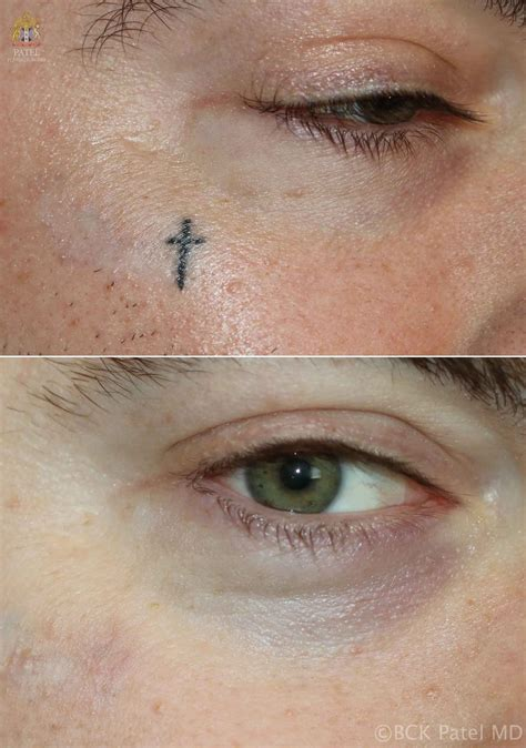 dark tattoo removal efficient removal of tattoos using advanced lasers