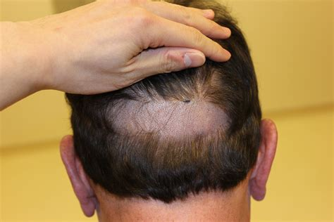 neograft in turkey hair transplant centers hairstylegalleries com