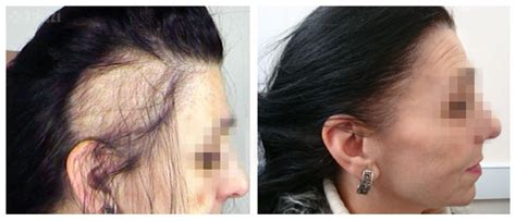 Types Of Hair Loss In Females by Hairloss In