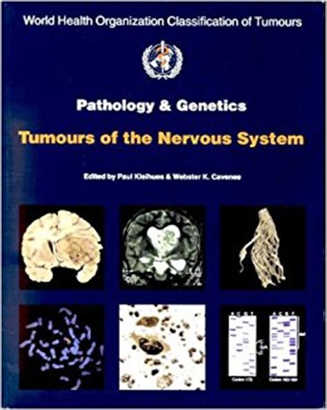 tumors of the nervus acusticus and the of the cerebellopontile angle classic reprint books world health organization classification of tumours