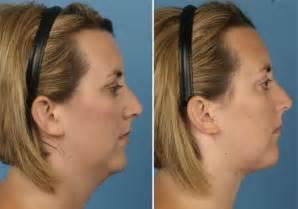 does hair emphasize a turkey neck neck lift with liposuction skin vein center 800 400 vein