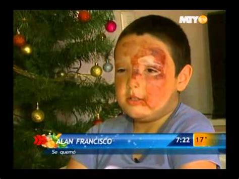 imagenes de niños quemados con cohetes las noticias se quema ni 241 o con cohete cuenta su