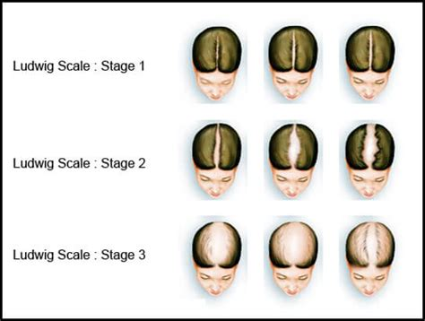 ludwig scale female androgenetic alopecia what are the difference between male and female pattern