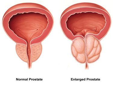 european remedies for prostatitis