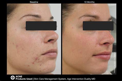 Step Detox Tamarac by Jan Marini Skin Care System Florida Dermatology Skin